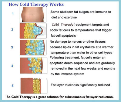 Cold Therapy how it works